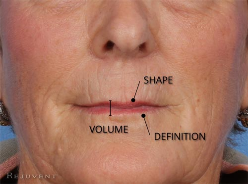 Loss of lip shape volume and definition