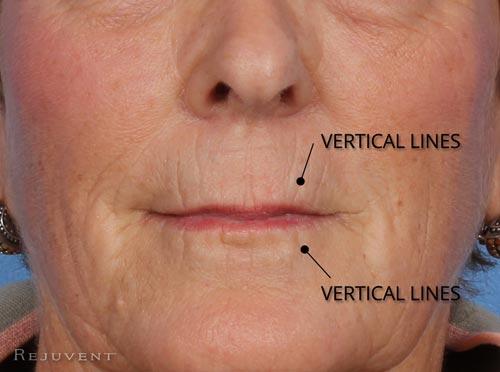 Vertical lip lines in aging lips