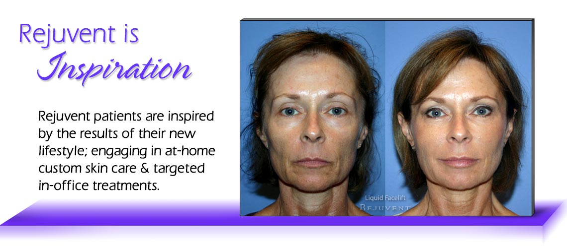 Inspiration Liquid Facelift