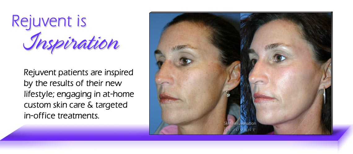 Inspiration Skin