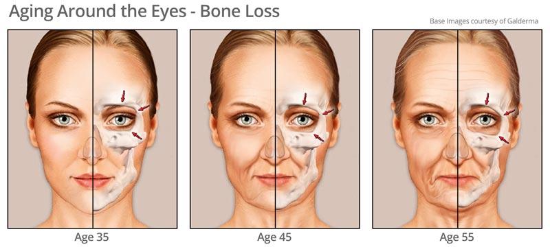 Bone Changes around eye area