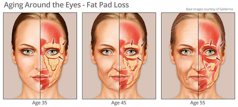 Fat pad changes aging around eye area