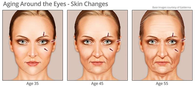 Aging skin around eye area