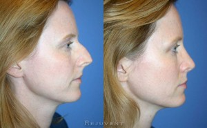 Large hump nose after Rhinoplasty