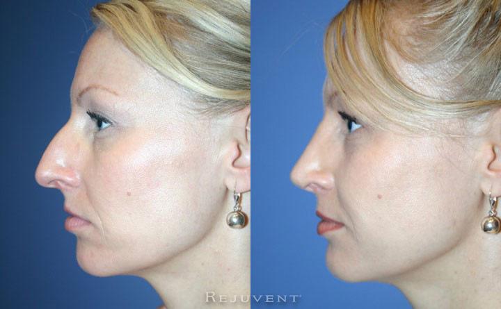 Scottsdale rhinoplasty