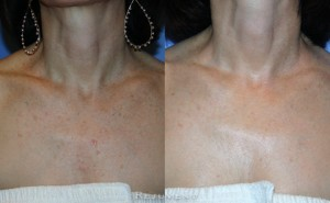 See more Rejuvent Skin Texture Improvement Photos