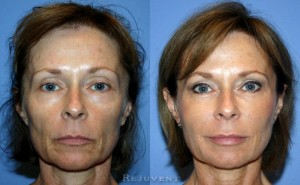 Looking Your Best In Your 50s Rejuvent Medical Spa