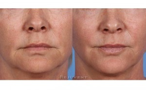 See more Rejuvent Skin Firming Photos