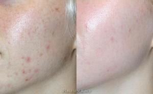 See more Rejuvent Acne / Hormonal Acne Photos