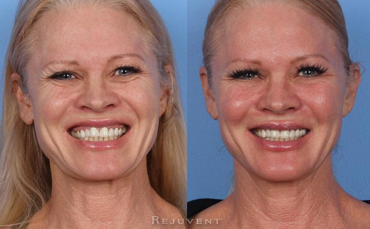 Gummy smile fixed with Botox Injections Rejuvent Scottsdale