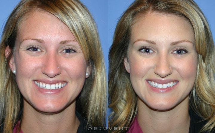 Smiling Botox Injections Patient Rejuvent Scottsdale