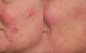 See more Rejuvent Redness Reduction Photos