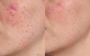 Rosacea and Redness Reduction at Rejuvent