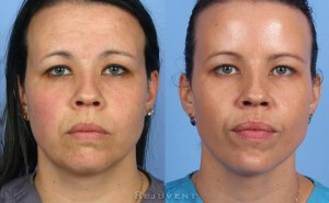 See more Rejuvent Chemical Peel Photos