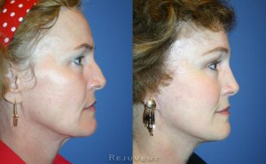 Rhinoplasty and facelift side view