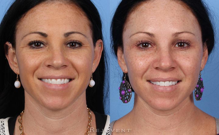 Botox Injections before and after at Rejuvent Scottsdale