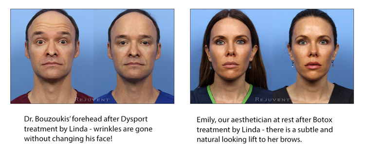 Dr Bouzoukis Before and After Botox