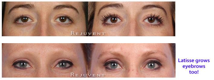 Latisse grows eyebrows and eyelashes