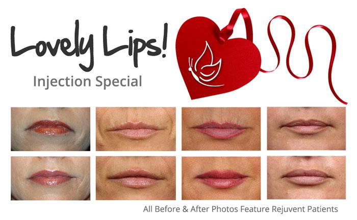 lovely-lips-filler-special