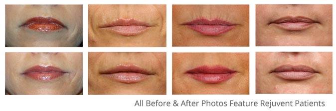 Lip Enhancement with Dr. Bouzoukis