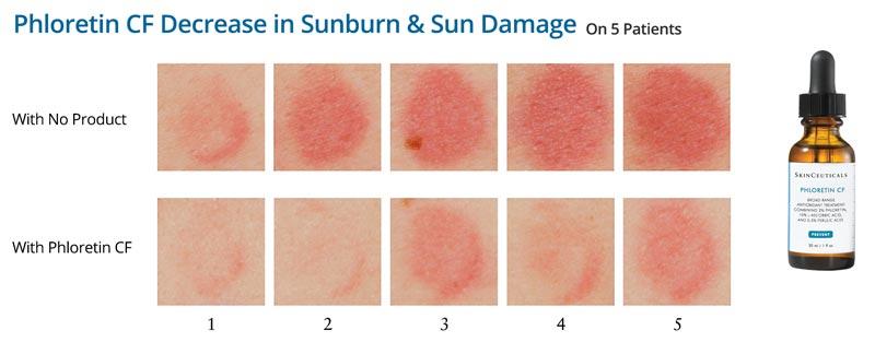 SkinCeuticals Phloretin CF photo study