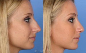 Hump removal before and after rhinoplasty