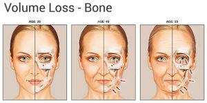 Bone aging Facial
