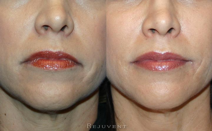 Lips after filler and Xeomin