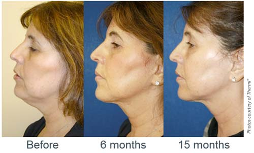Great Results with Thermi