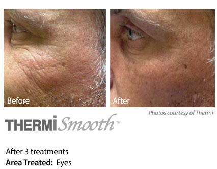 Thermi Smooth around eyes
