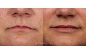 Volumized Lips with lip Filler