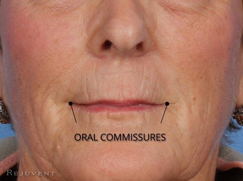 Aging Lip Oral commissures