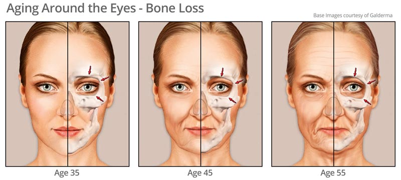 Bone Changes around eye area