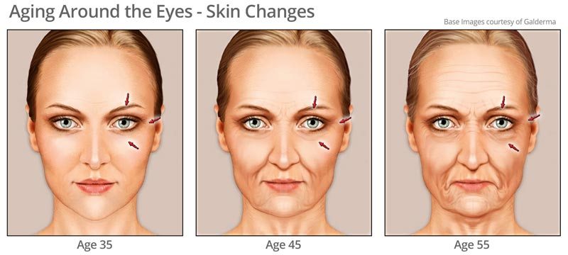 Aging skin around eye area