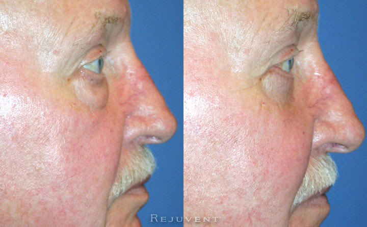 Lower Blepharoplasty Patient 1