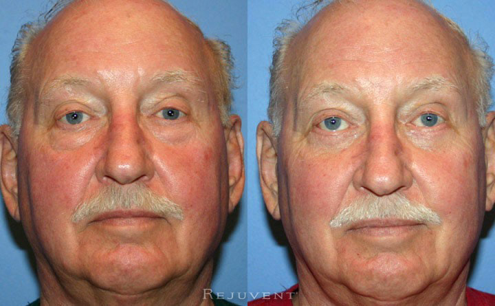 Lower Blepharoplasty Patient 2
