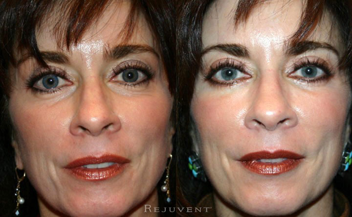 Lower Blepharoplasty Patient 3