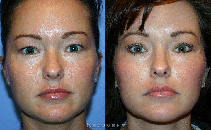 Upper Blepharoplasty Patient 1
