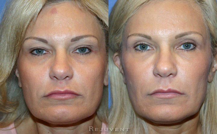 Upper Blepharoplasty Patient 2