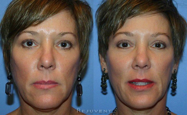 Upper Blepharoplasty Patient 3