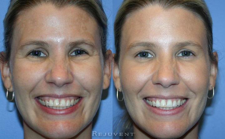 Botox Patient Scottsdale Rejuvent