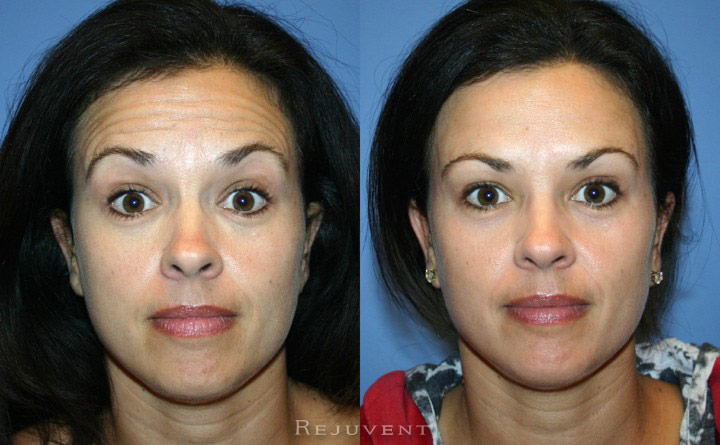 Botox Patient Forehead and Crows Feet Scottsdale