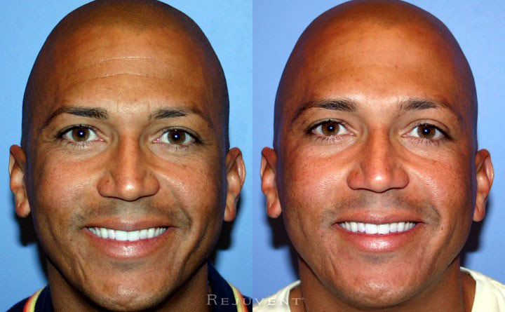 Botox Patient 2