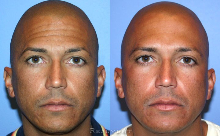 Botox Patient Forehead application Scottsdale Arizona