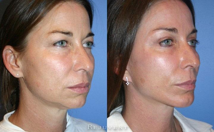 Chin Augmentation Patient 1
