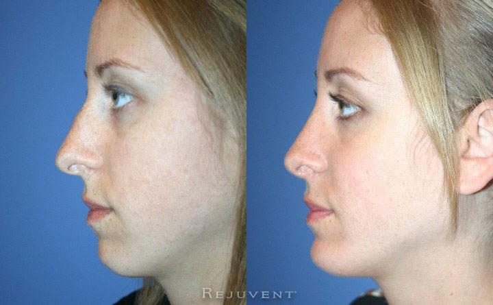 Chin Augmentation Patient 5