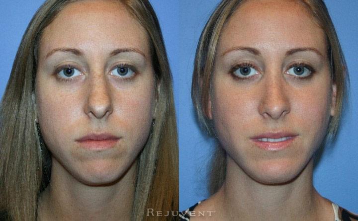 Chin Augmentation Patient 3