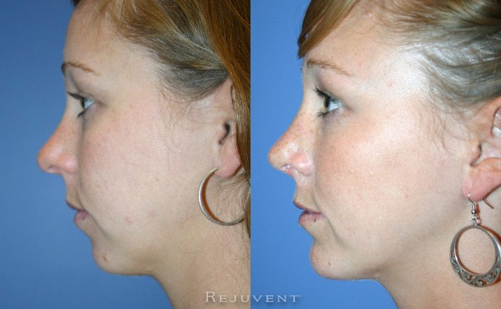 Surgical Chin Augmentation