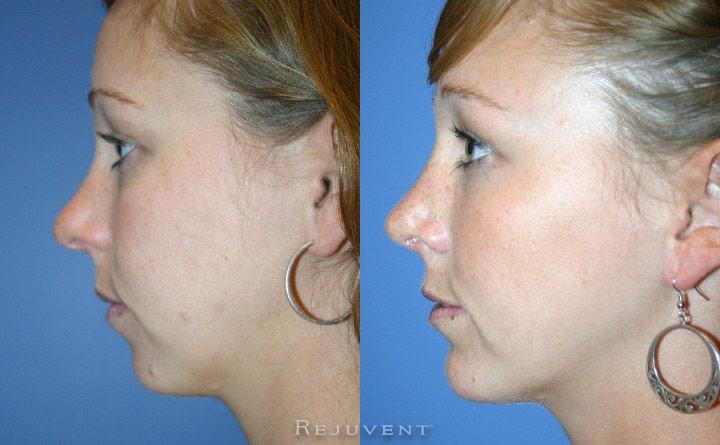 Chin Augmentation Patient 2