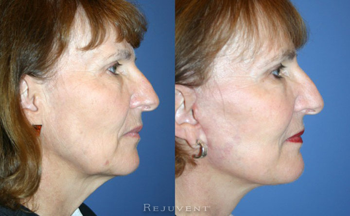 FaceLift with Corset Patient 2